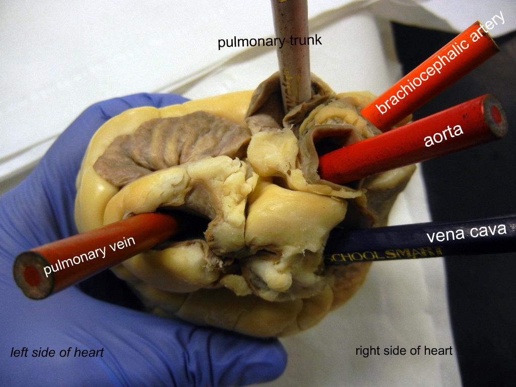 Heart Pulmonary Vein Labeled