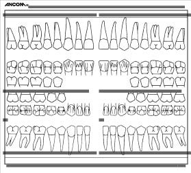 picture regarding Printable Dental Charting Forms called dental chart sort -