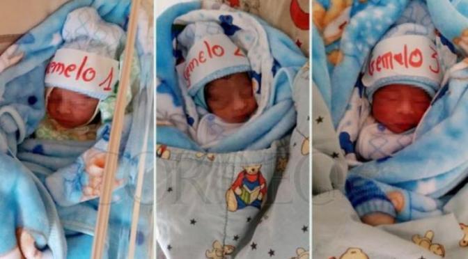 Madre con Covid-19 da a luz a trillizos en Sucre