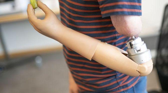 Video: Estudiantes de medicina en campaña para donación de prótesis para manos
