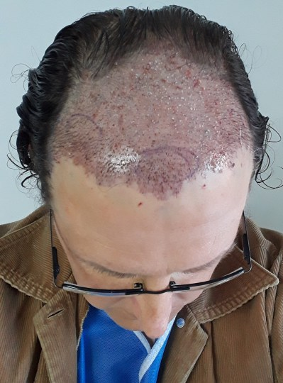 Hair transplant: view of top of head after procedure