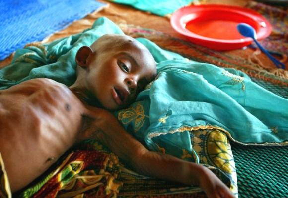 Chaque jour, des milliers d'enfants meurent de malnutrition.