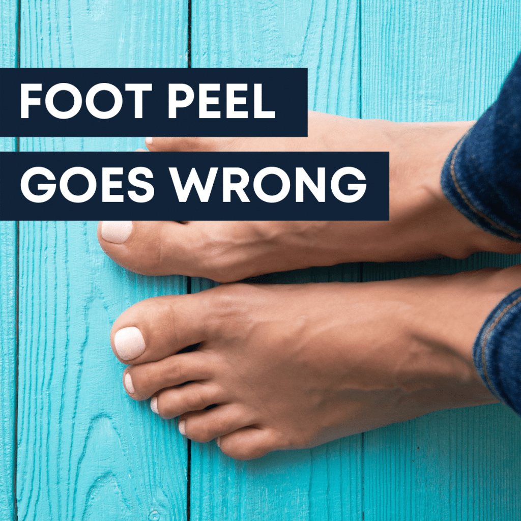 image of woman's feet on turquoise painted wood - text says foot peel goes wrong