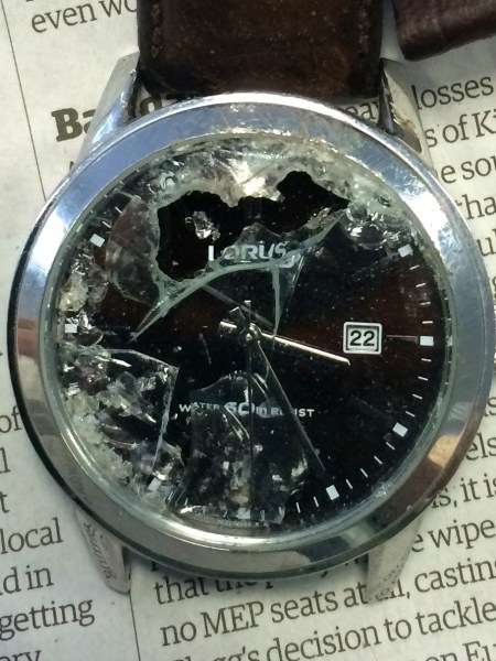 My watch broke in my cycling accident.