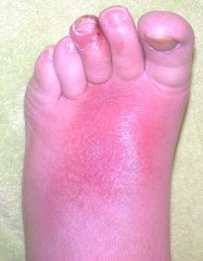 sunburn on foot