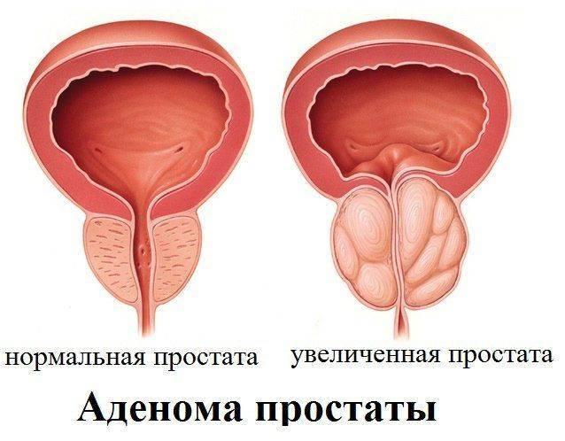 Prostatitis Állandó hívás a WC- re
