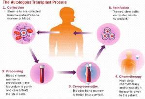 Stem Cell Transplant Process