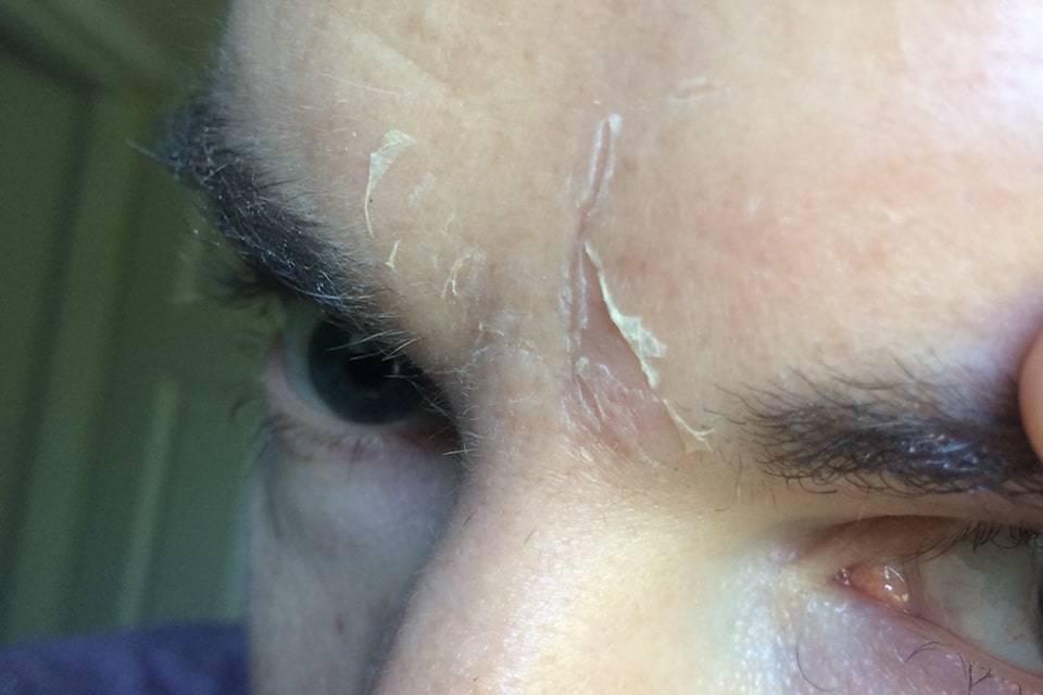 skin shedding