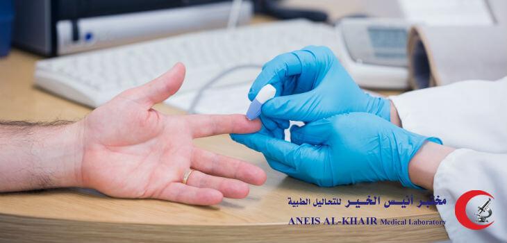 تحليل السكري ودوره في الكشف المبكر عن المرض
