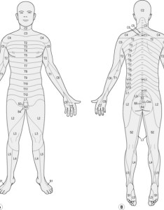 Figure  this dermatome chart is only one of several versions dermatomal sensory distribution commonly used there are inidual differences among also treating neuropathic pain anesthesia key rh aneskey