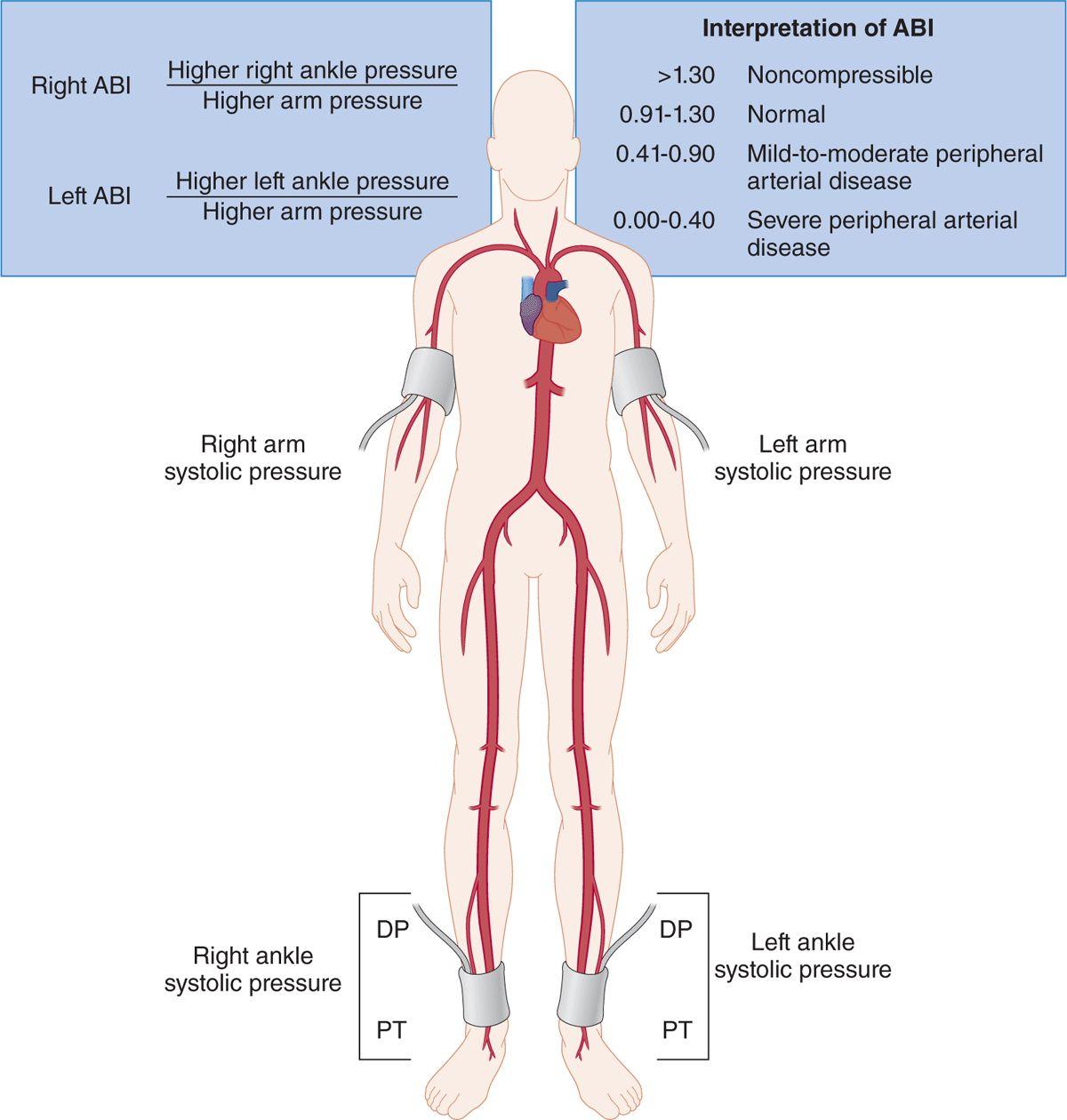 Occlusive Arterial Jv Disease