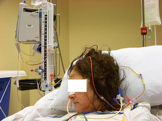 Intracranial Pressure Monitoring | Anesthesia Key