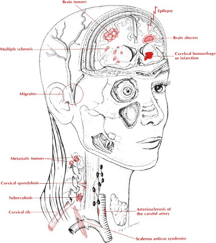 P | Anesthesia Key