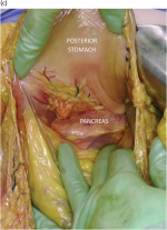 Chapter 22 – General Principles of Abdominal Operations for Trauma