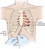 Pediatric vascular access and centeses