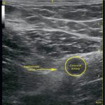 Adductor canal block