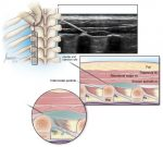 Erector spinae plane block