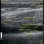 Subcostal transversus abdominal plane block