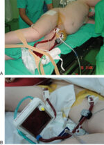 Postoperative Care of theThoracicPatient