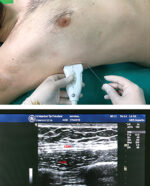 Video-Assisted Thoracoscopy: Multiportal Uniportal