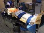 Esophageal Procedures