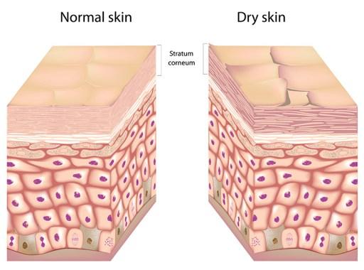 Normal vs. Dry Skin
