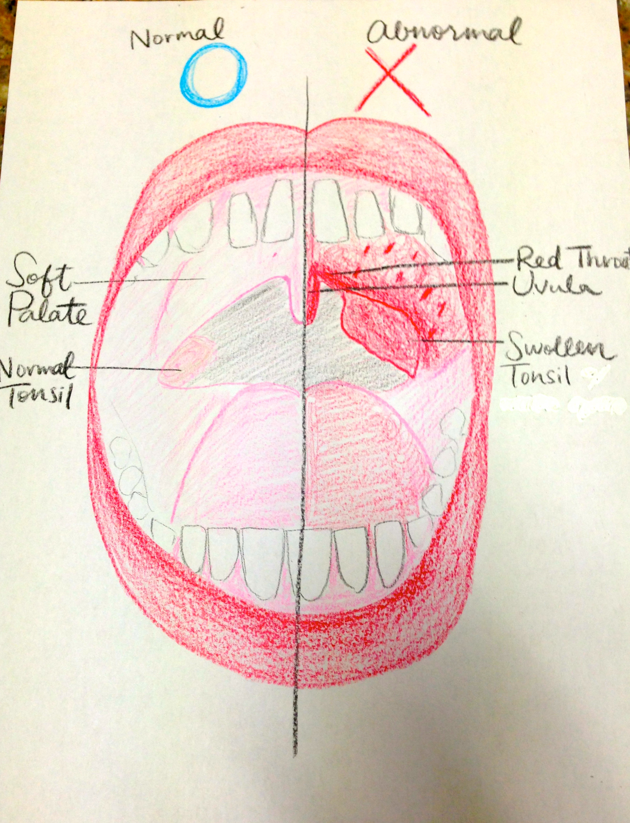 back of throat diagram seymour duncan sore throats  intensity and endurance