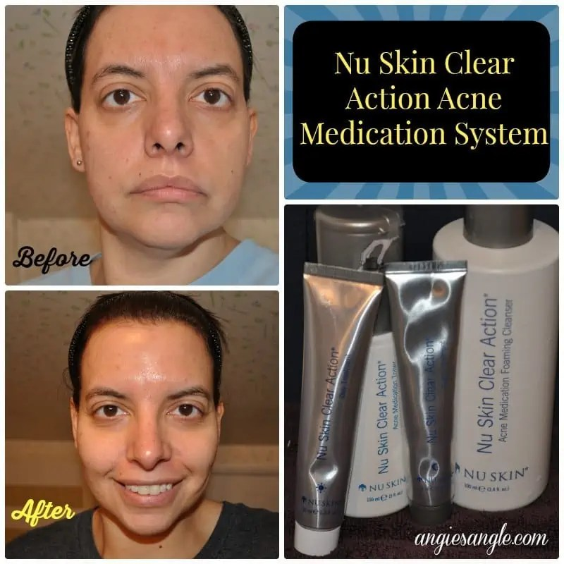 Nu Skin Clear Action Acne Medication System #BeautyMonday