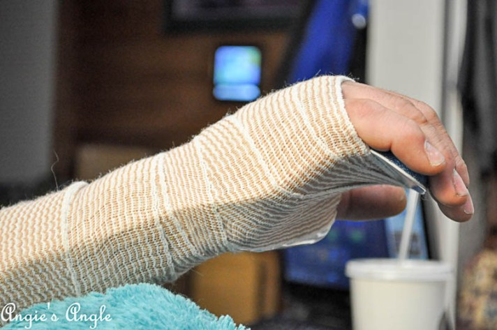 2017 Catch the Moment 365 Week 38 - Day 263 - Jason with Broken Hand Bone
