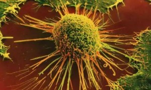 cancer cells 300x1801 When the Diagnosis is Cancer
