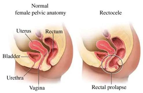 rectocele-anatomy