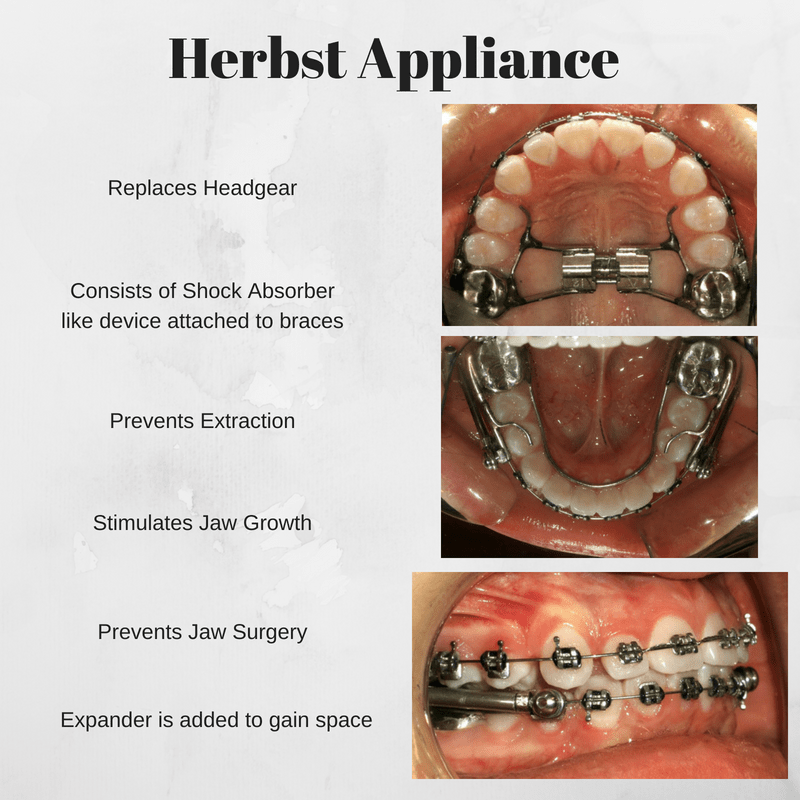 Herbst Appliance  Angolkar4Smiles