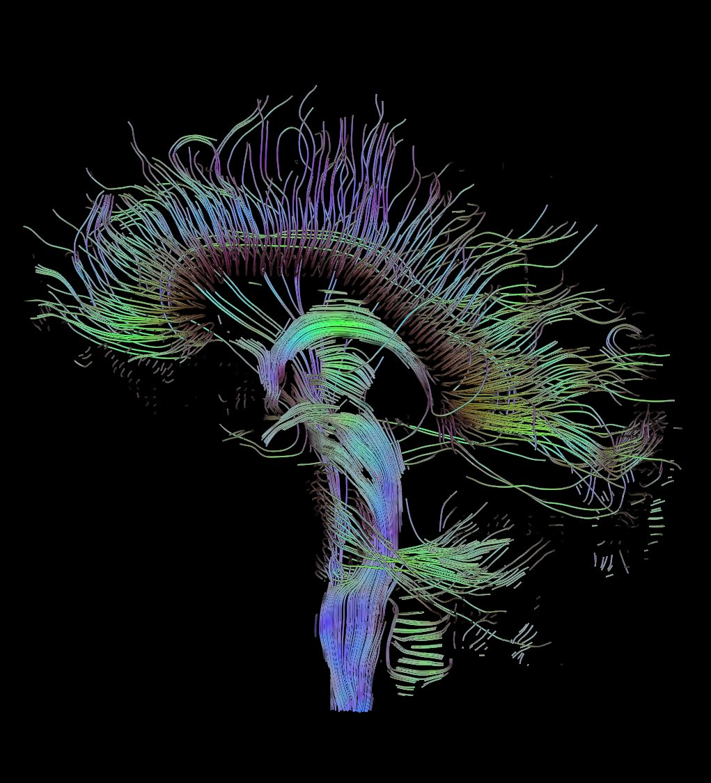 hight resolution of dti sagittal fibers