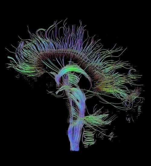 small resolution of dti sagittal fibers