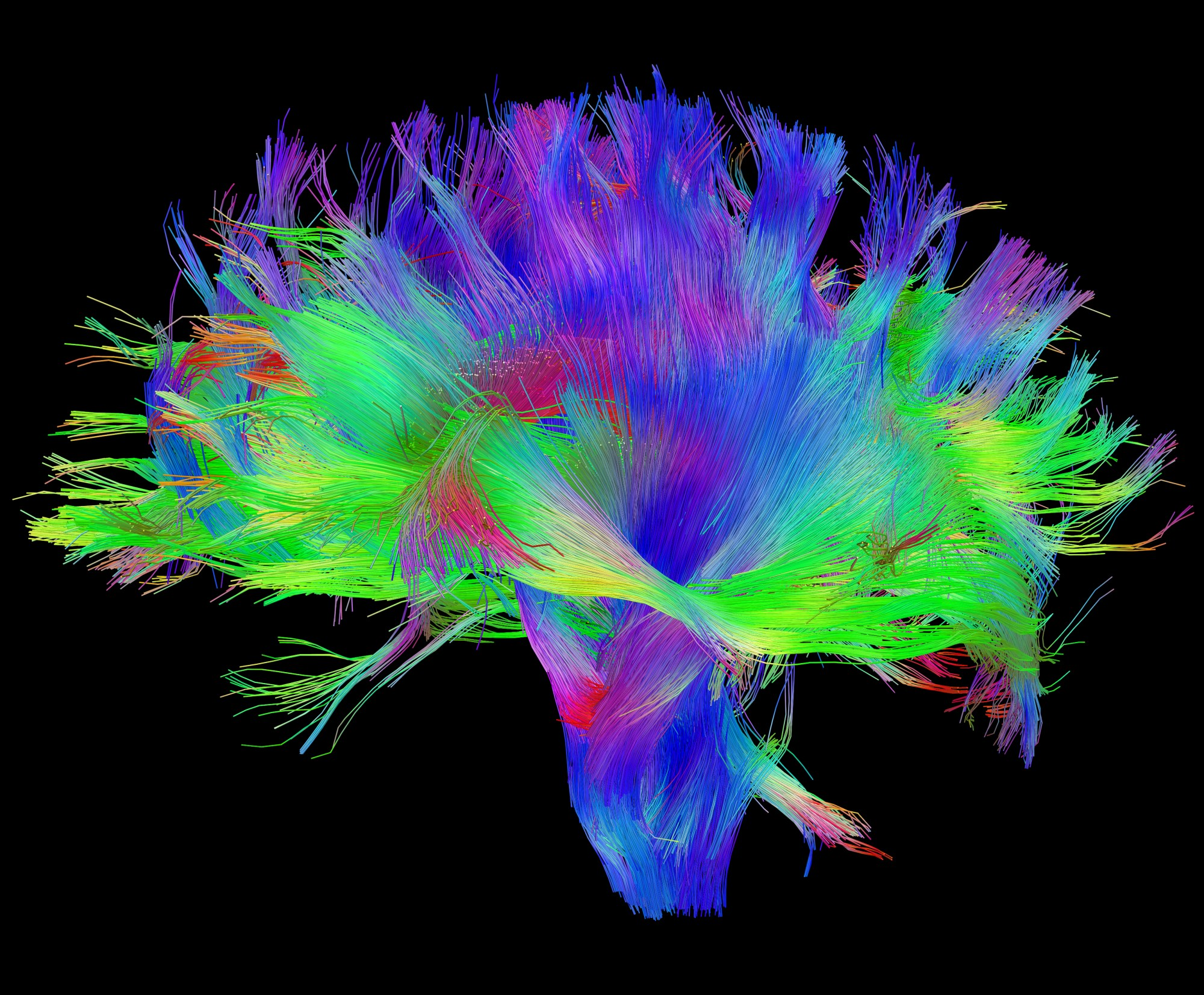 hight resolution of diffusion mri of the human brain source human connectome project