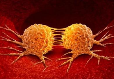 """Israel: Limfomul este """"cancerul tinerilor"""" / Cel mai frecvent diagnosticat tip de cancer / Ce trebuie să știi"""