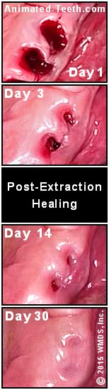 What Does A Tooth Blood Clot Look Like : tooth, blood, Tooth, Extraction, Healing, Timeline:, Heal?, Pictures.