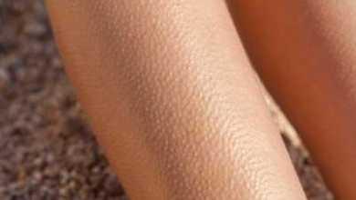 Photo of علاج جلد الوزة والشعر تحت الجلد
