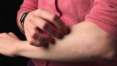 Photo of الأكزيما – التهاب الجلد التأتبي