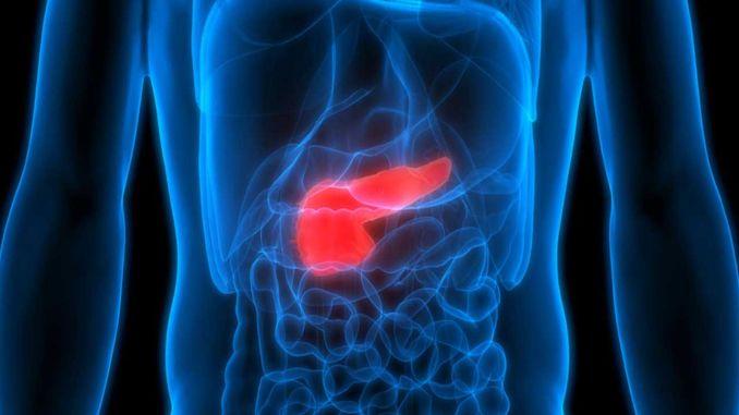 turkiyede her yil bin kisi pankreas kanseri oluyor