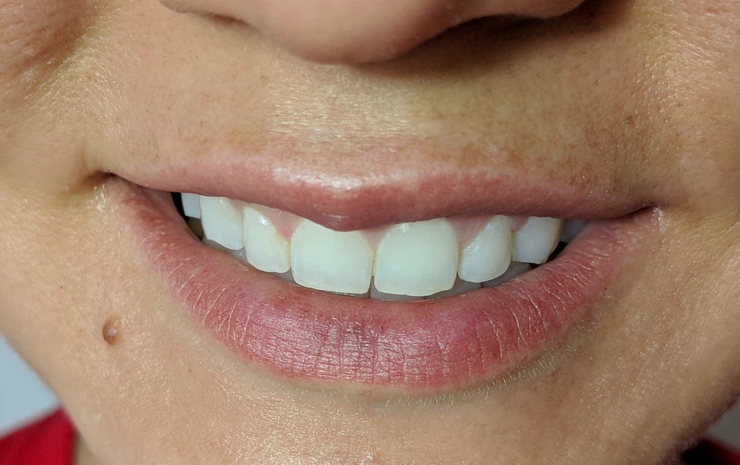 teeth whitening, coffee stains, smile brilliant