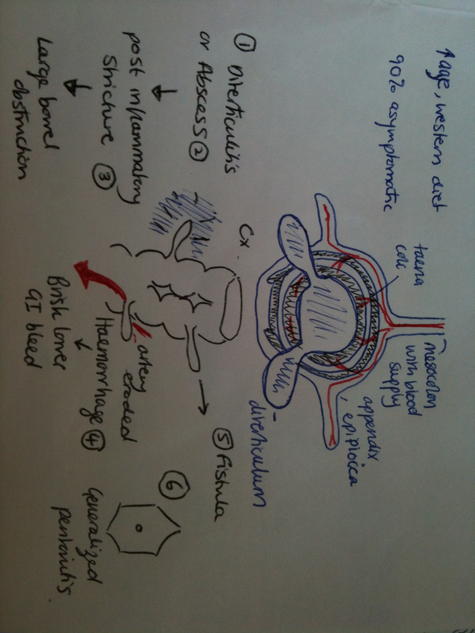 hight resolution of http www patient co uk doctor diverticular disease htm