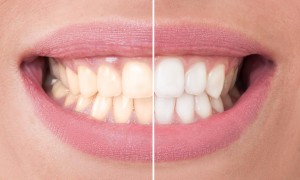 teeth whitening faq