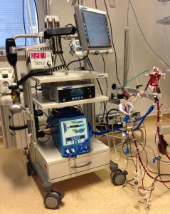 ECMO-maskinen som syresätter blodet.