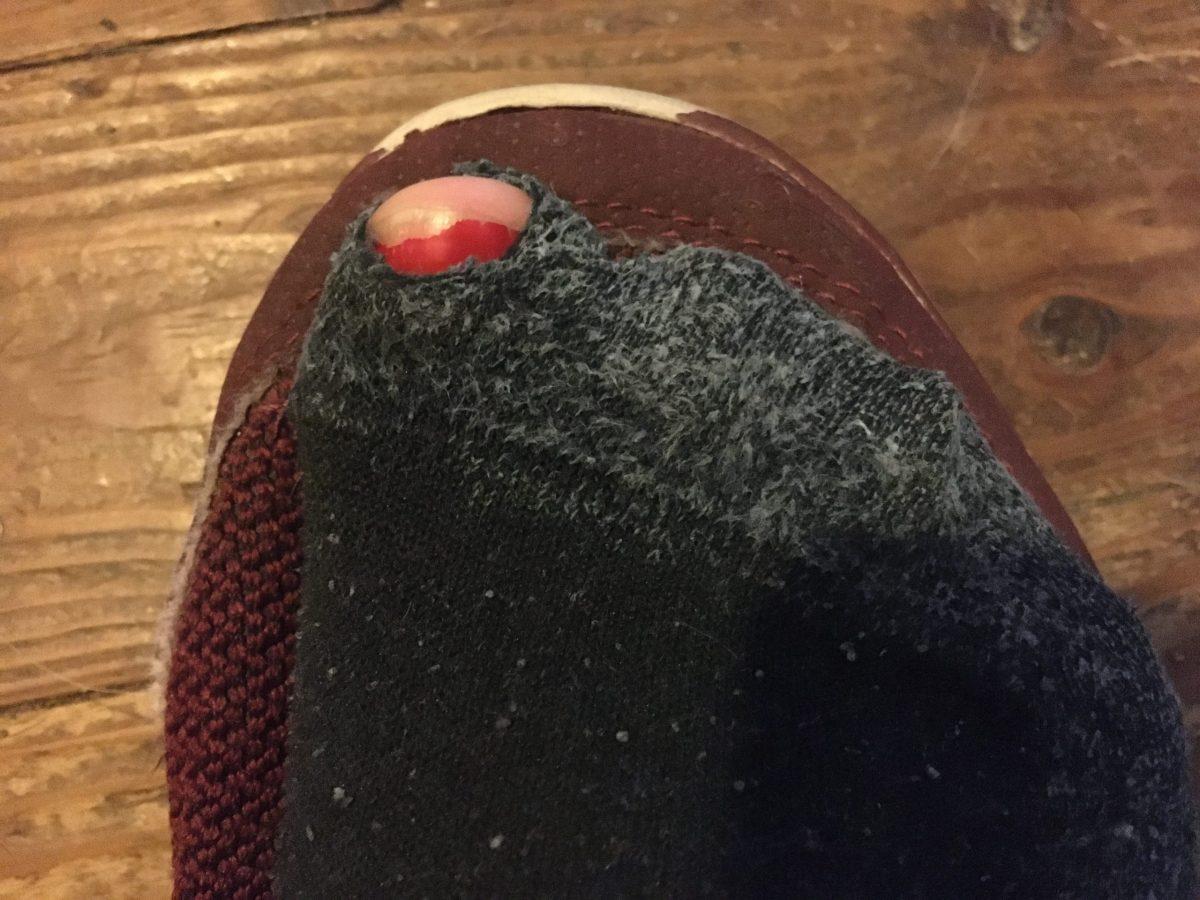 The Sock Rebellion