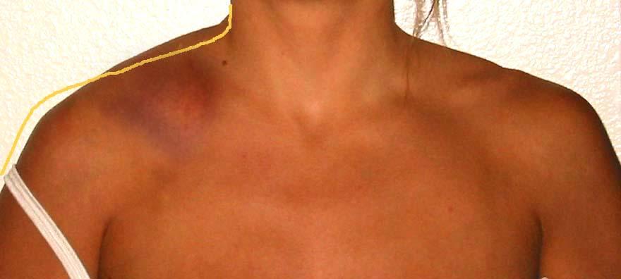 swollen shoulder Gallery