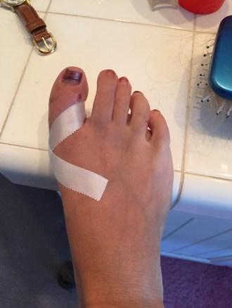 2015-8-31 Clarie's Toe