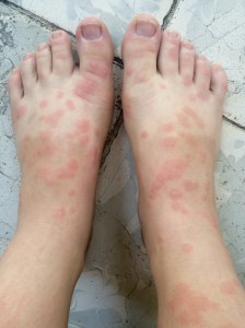 A bad case of bed bugs. I think.