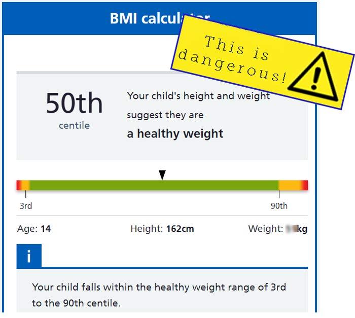 BMI calculator - anorexia