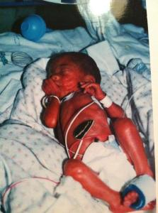 Here's our little heroine shortly after birth. That's her father Rick's wedding band around her right forearm.